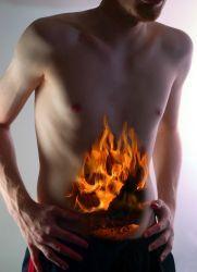Arderea în stomac