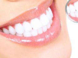 Зубной камень - лечение
