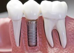 Зубные импланты за и против