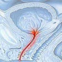 Зуд в уретре